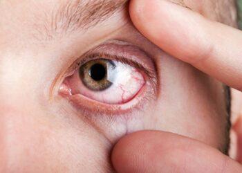 Os olhos revelam a saúde e a personalidade