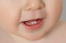 Meu dentinho